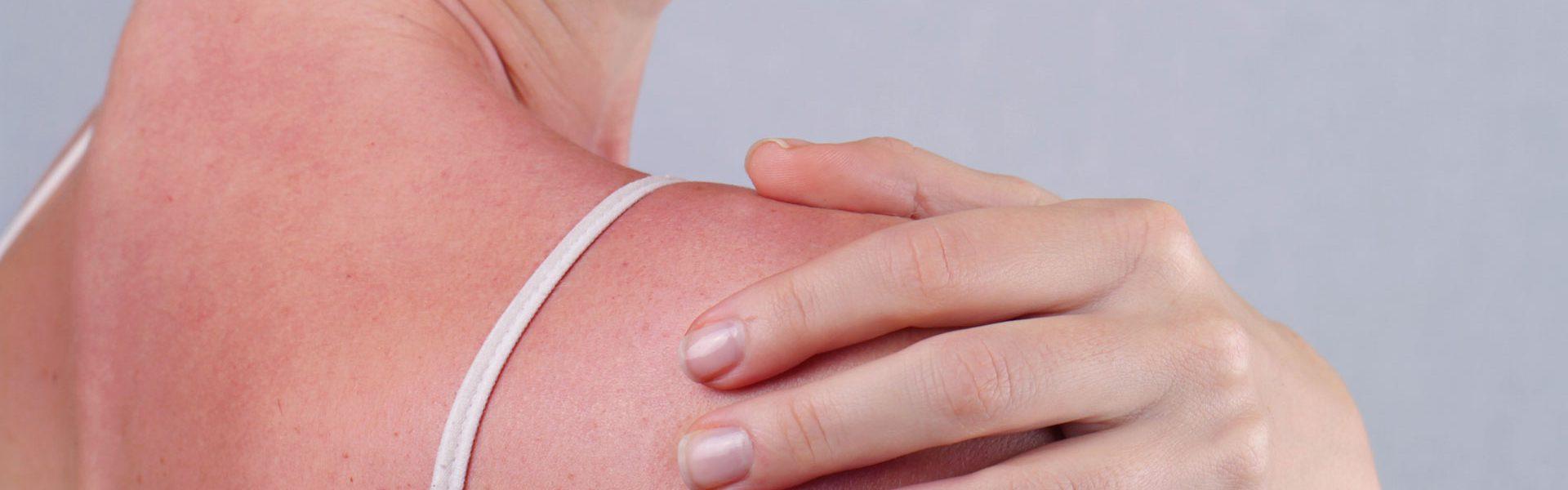 poparzenia słoneczne